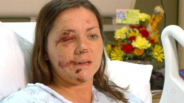 Left for dead: Runner hit by car