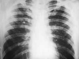 #5: Lung Cancer: 42,132 incidents between 1998 - 2008. Source: Missouri Department of Health and Senior Services.