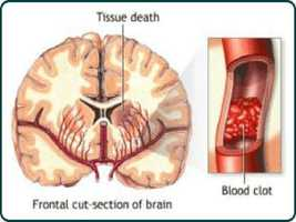#7: Stroke/Other Cerebrovascular Disease: 39,567 incidents between 1998 - 2008. Source: Missouri Department of Health and Senior Services.