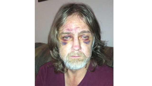 "Image Independence assault victim ""John"""