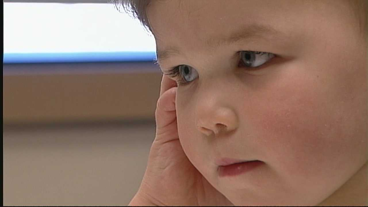 2-year-old now hears with the help of Cochlear implants