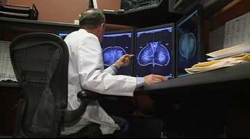 1. Most breast cancers are not related to family history