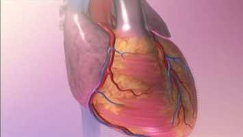 2. Exercise is good for your heart:Heart attacks are more likely to occur when you do high levels of exercise whether you are a regular exerciser or a weekend exerciser. However, the benefits of exercise even just on weekends far outweigh the small risk of weekend exercise assuming you have no heart disease.