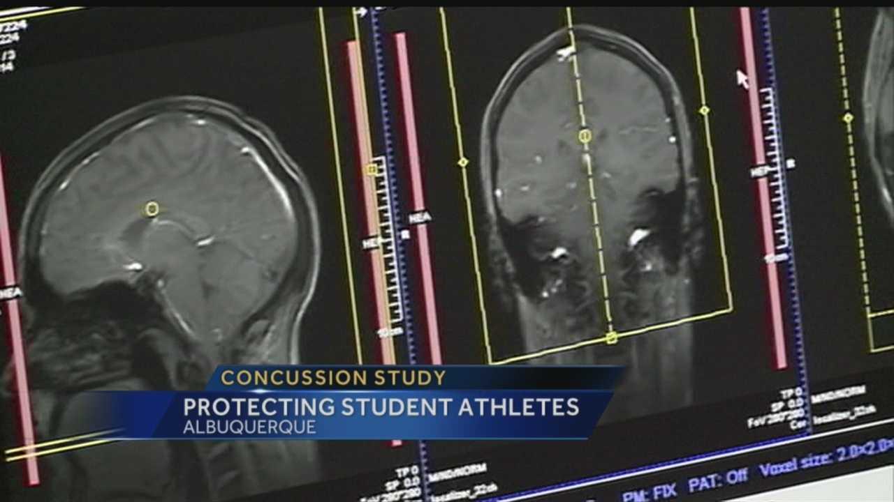 Todd Kurtz gets brain checked