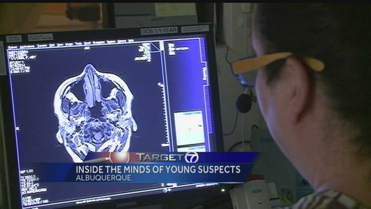 Research into kids who commit murder and the difference in their brain makeup.