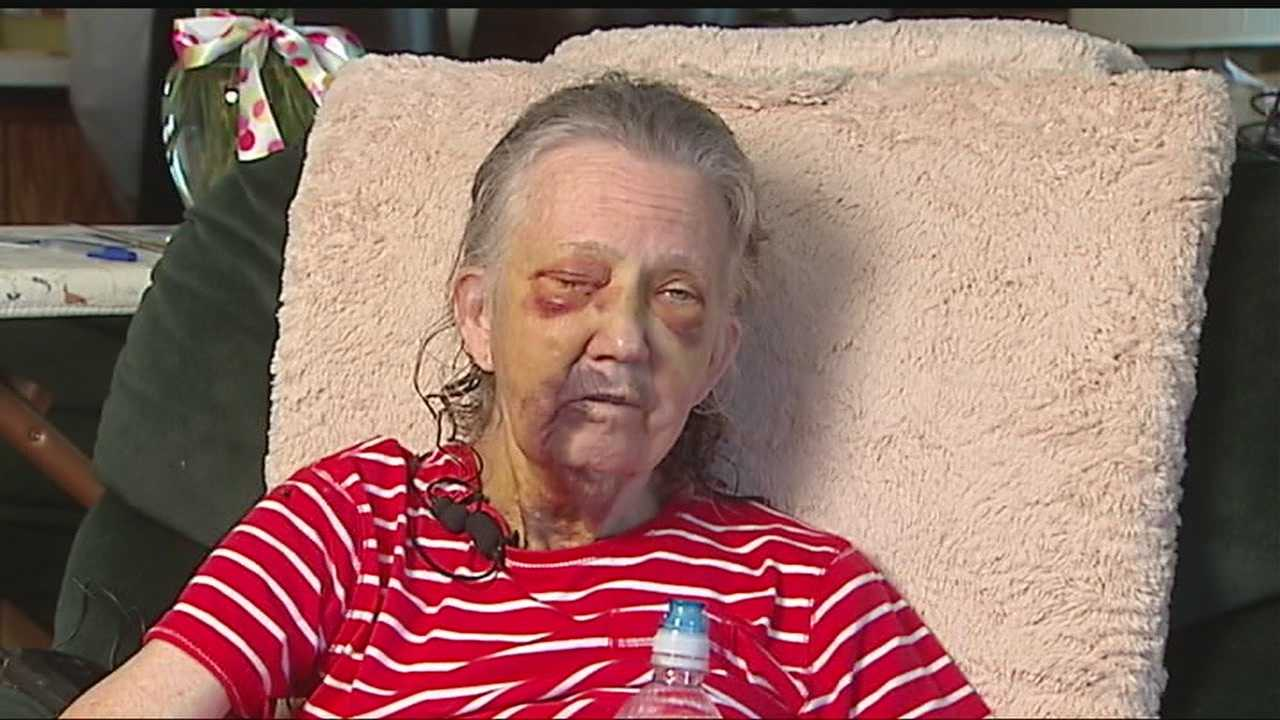 img-Elderly woman badly beaten up in her own home 10P H