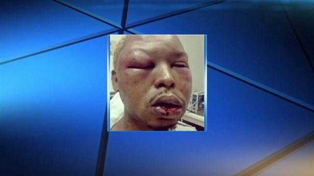Man believes his sexuality prompted beating