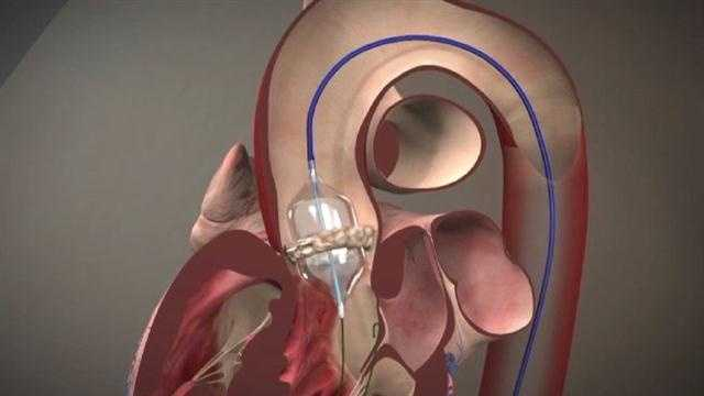 Procedure helps severe aortic stenosis sufferers