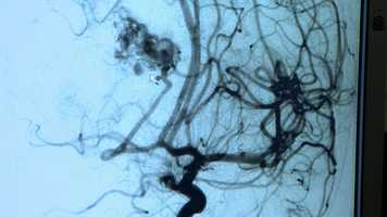 This MRI shows the AVM, which looks like a batch of tangled vessels, in Gilad's brain.