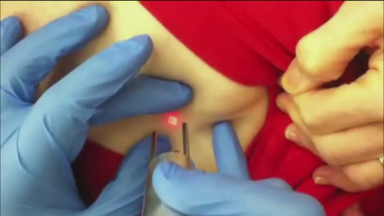 Free tattoo removal for breast cancer survivors