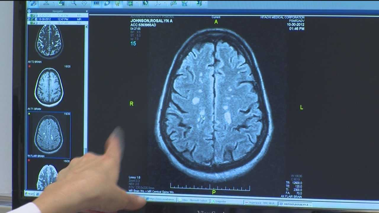 Multiple sclerosis symptoms hard to pin down