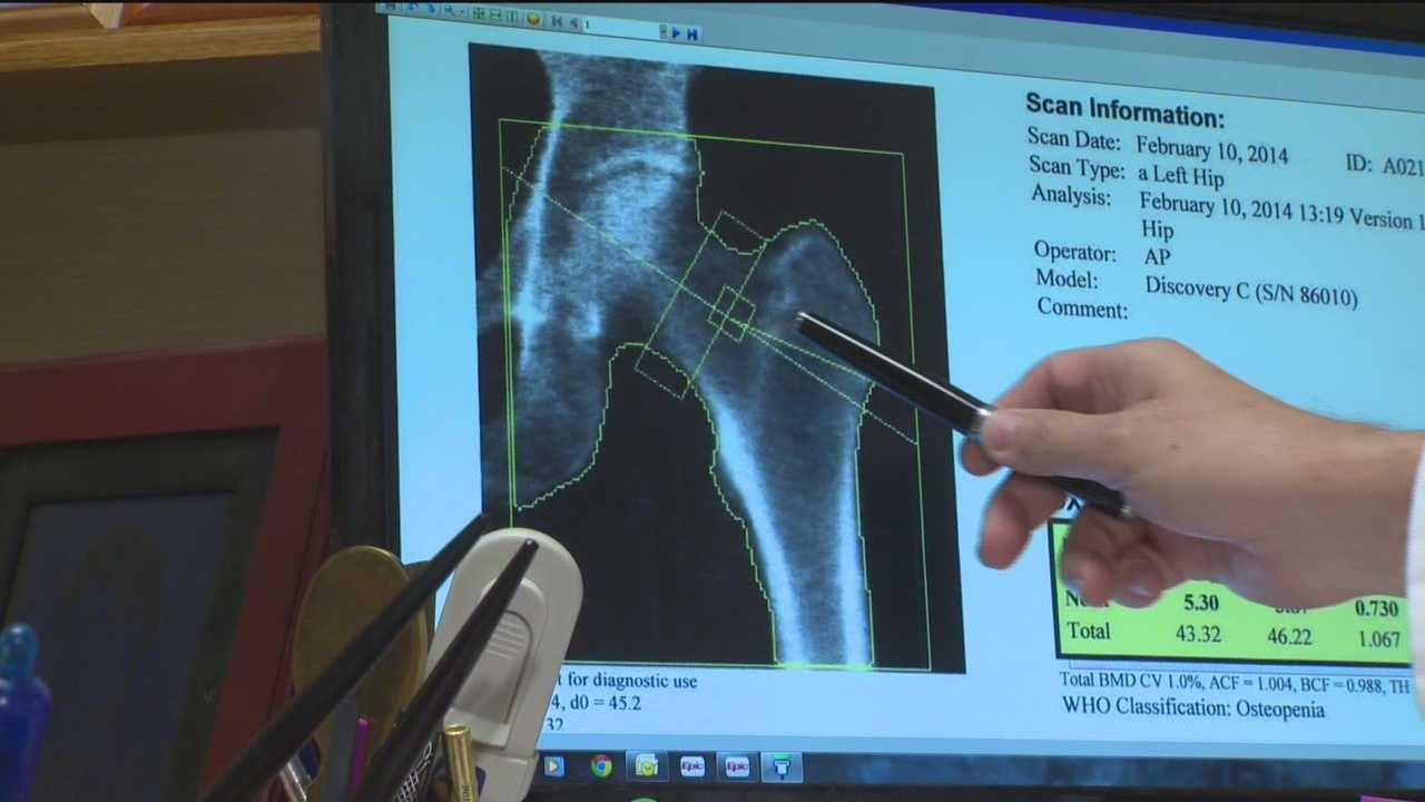 Doctor: Strengthen bones early to avoid osteoporosis