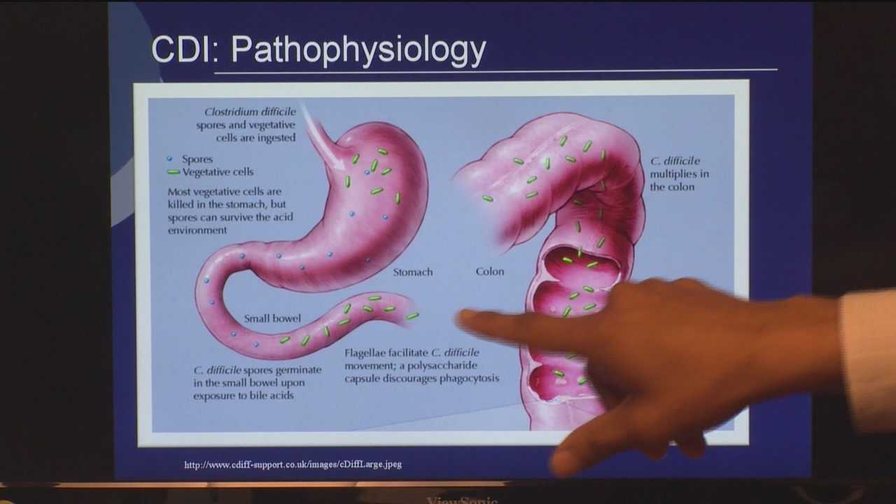 Fecal Transplant Helps Patients Of Painful C Diff