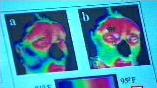 Thermal Imaging Lie Detector