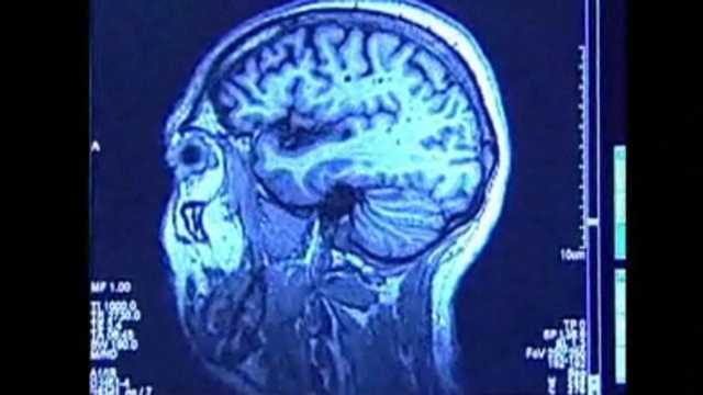 Concussion Gene
