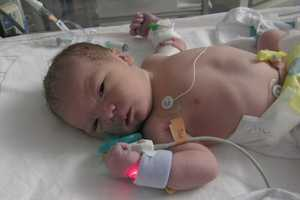 Lucas at birth, just before he was to undergo open heart surgery.