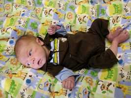 Six months later, when Lucas had learned to sit up, he underwent a second surgery — the first of two corrective operations aimed at permanently utilizing pressure from the lungs to pump blood to his upper body, taking the load off his heart.