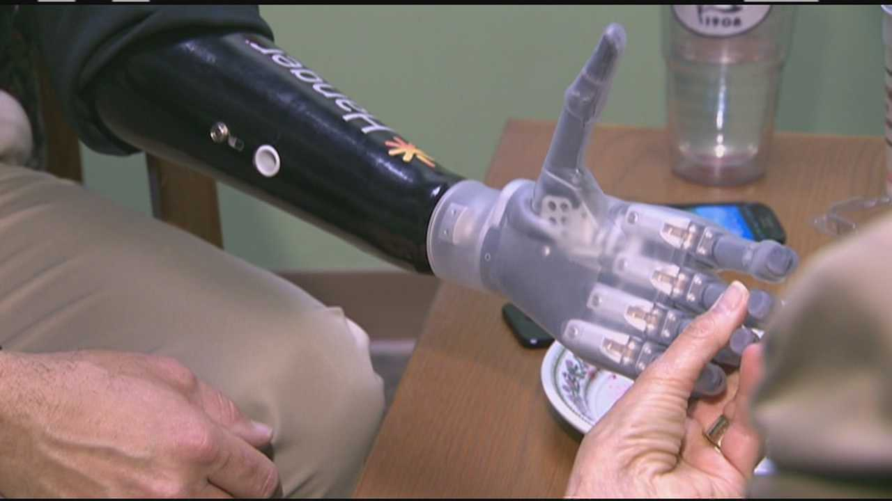 Man says bionic hand nothing short of miraculous