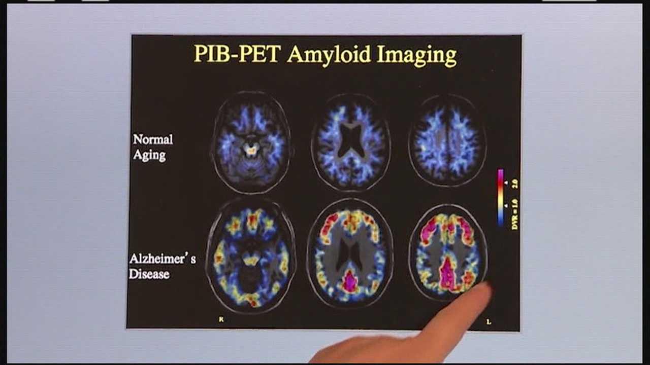 Landmark Alzheimer's treatment focuses on prevention