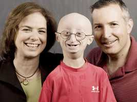 The Progeria Research Foundation was founded by his parents.