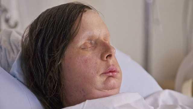 Charla Nash face transplant