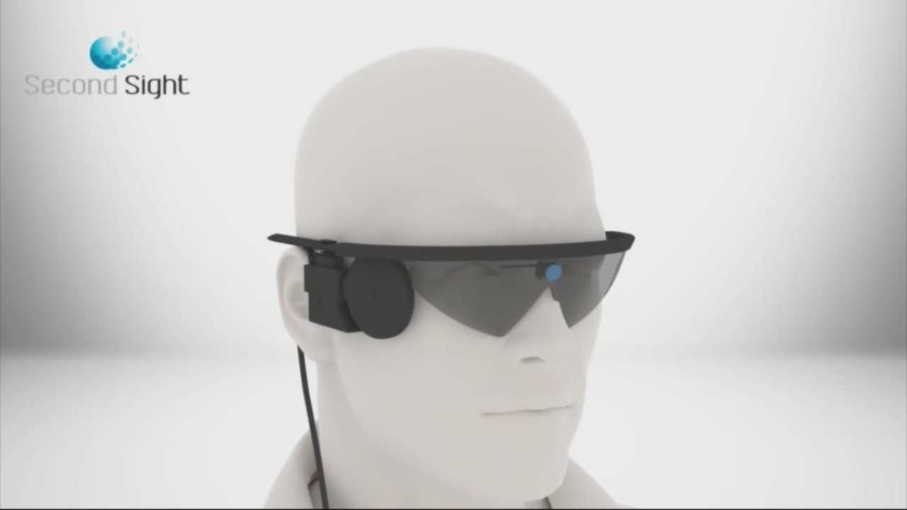 Bionic eyes helping people see life in a new way
