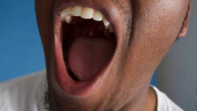 open mouth bad breath