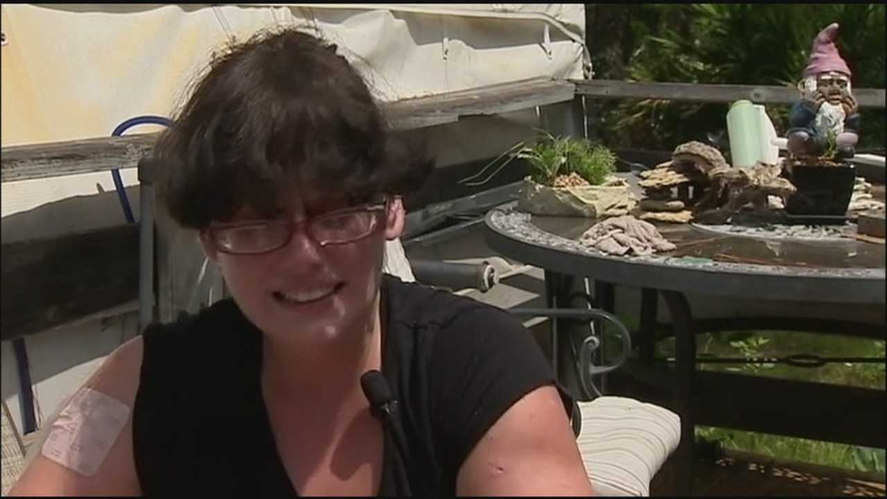 Woman speaks about mauling by dogs