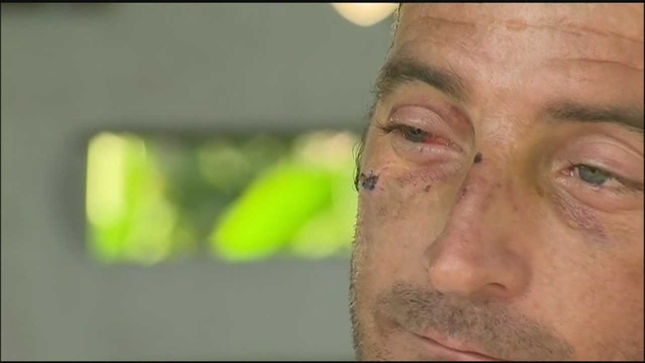 Man striped, beaten and robbed on date speaks