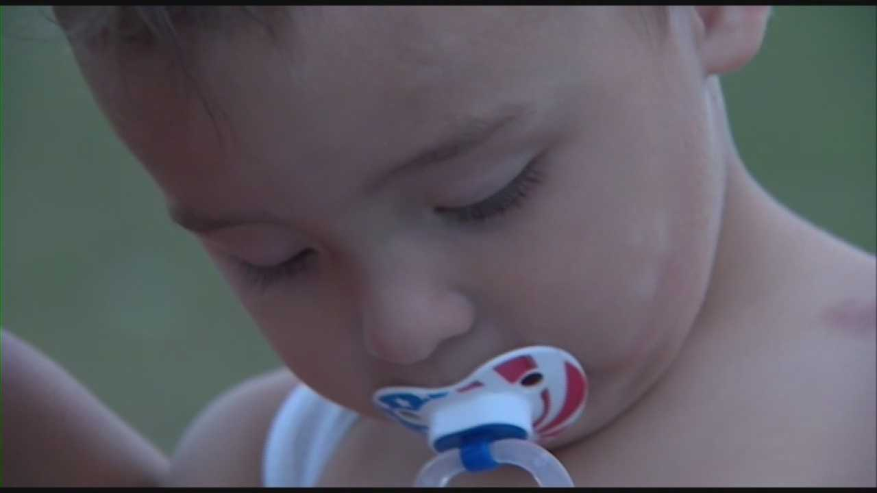 Toddler hit by car on beach recovering