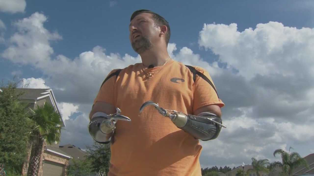 Man's prosthetic arms stolen when thief takes truck