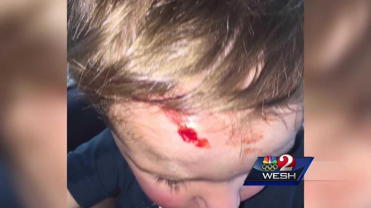 Peacock attacks Orange County toddler