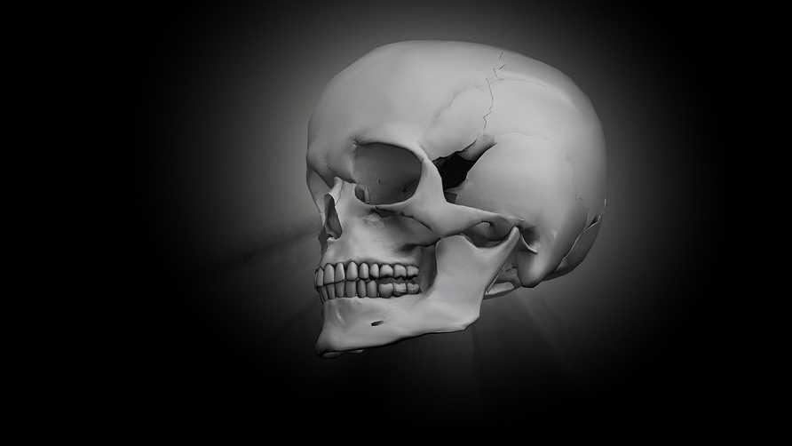 8.30.16 skull pixabay.jpg