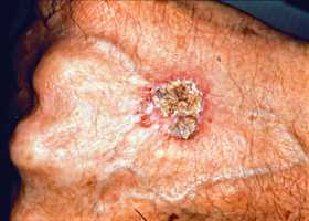 Squamous Cell Carcinoma (SCC) is the second most common form of skin cancer. SCC is an uncontrolled growth of abnormal cells arising in the squamous cells, which can be found in most of the skin's upper layers.