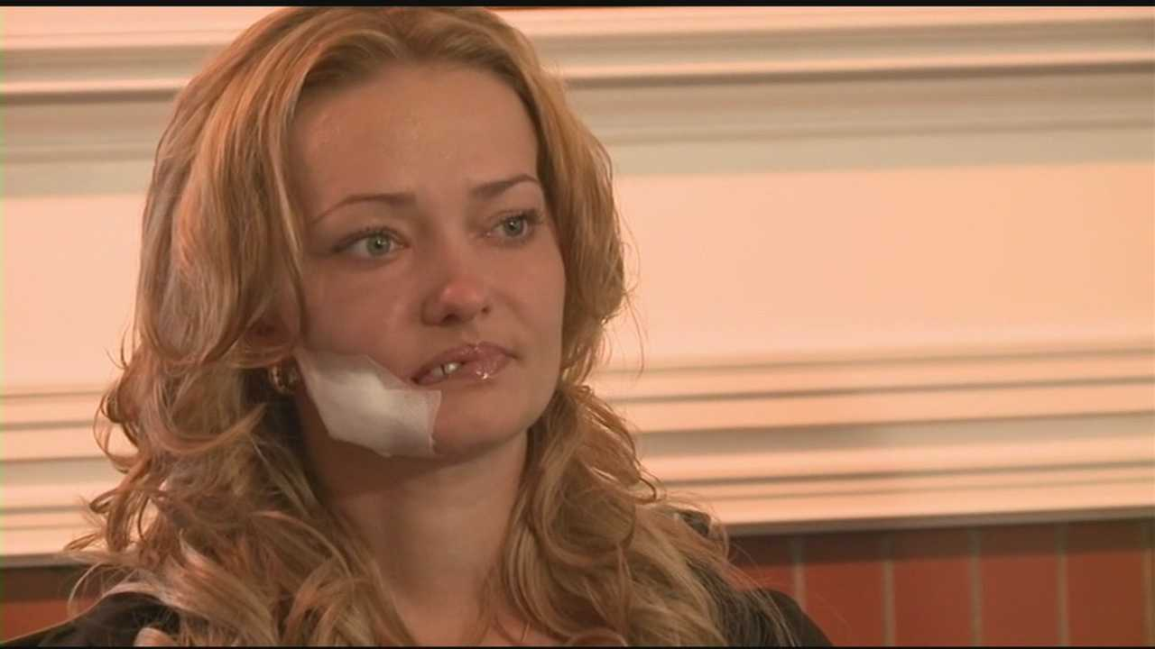 A woman is recovering after having reconstructive surgery.