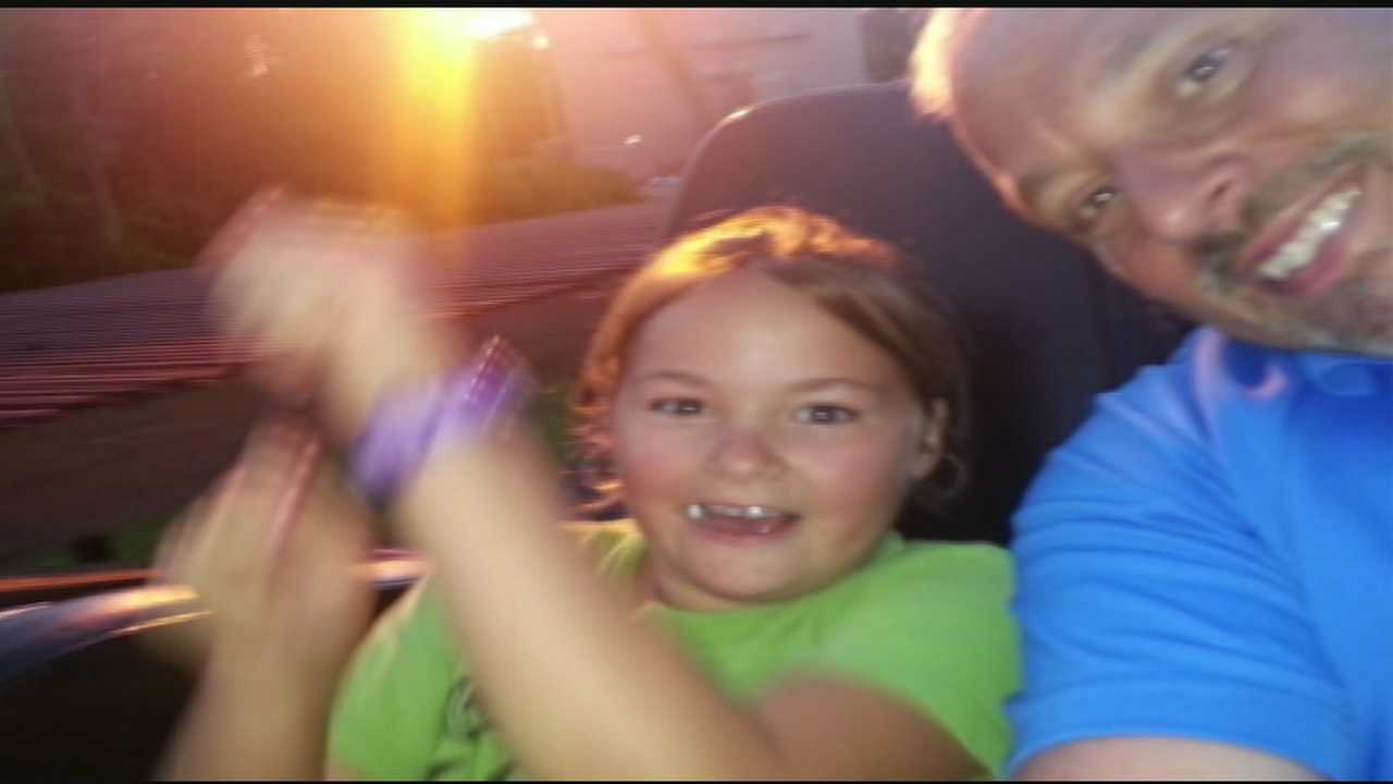 Mason dad says fireworks mishap serves as warning to others