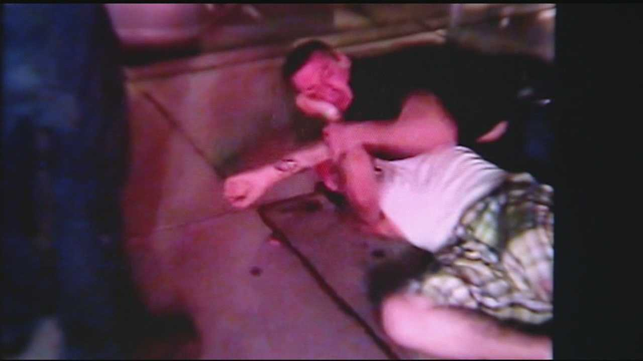 Man intends to sue after nose bitten off in street fight