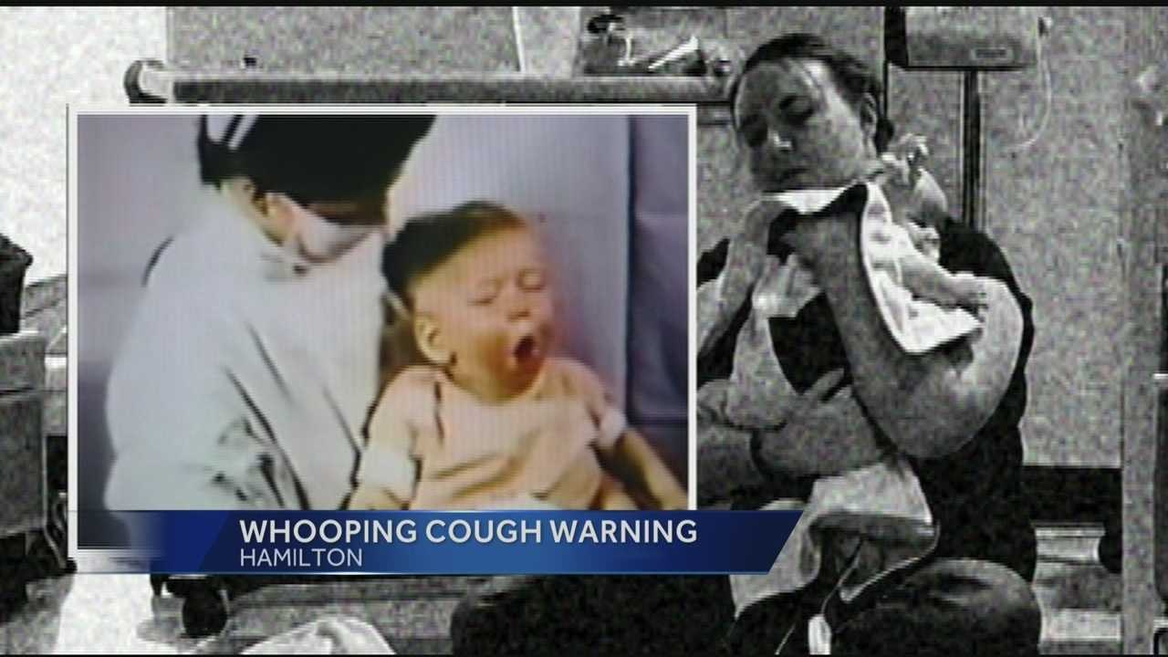 Whooping cough confirmed at Butler Co. schools