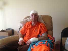 A Manchester man is recovering after his bob-house exploded over the weekend, injuring him and his friend.