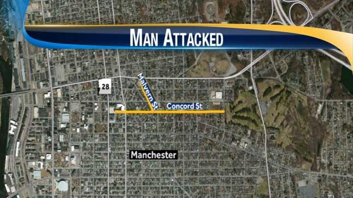 map-Man mugged while walking his dog