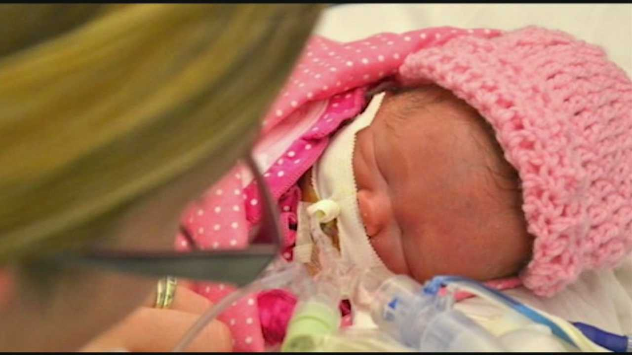 'Miracle' baby's condition improves