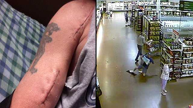 "Tom Papakalodoukas suffers from what's called a ""popeye deformity"" after he fell in a Walmart in Port St. Lucie in 2011. He won a $1.3 million settlement as a result."