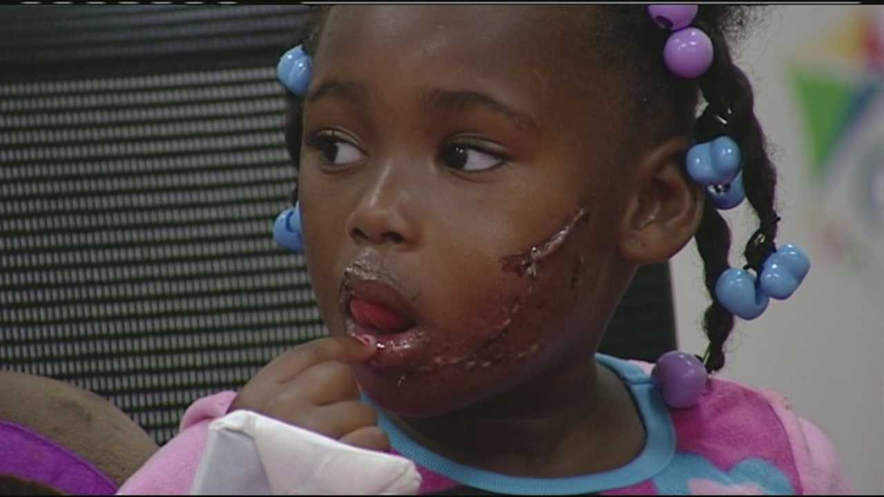 Girl recovering after being bitten by pit bull