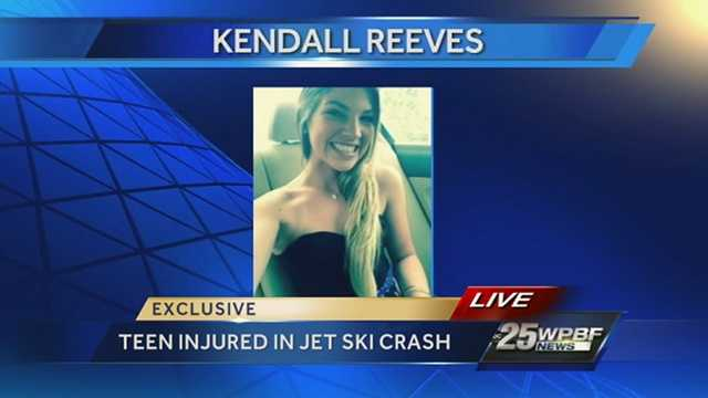 Kendall Reeves, 17, is fighting for her life at St. Mary's Medical Center after she and a friend were riding separate jet skis that collided on the Loxahatchee River near Jupiter Sand Dune this week.