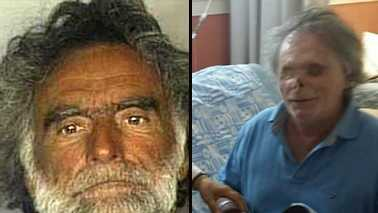 It has been two years since Ronald Poppo was brutally attacked by a man on a causeway in Miami.