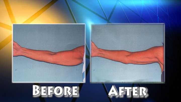 Smaller Arms-Before & After.jpg