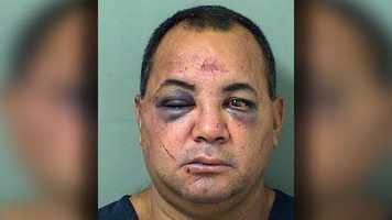 Rafael Saborit, 44, is charged with aggravated battery with a deadly weapon.