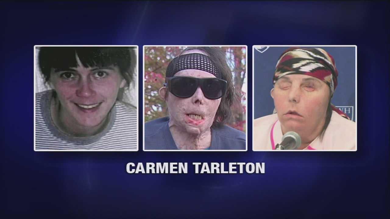 05-01-13 Carmen Tarleton Face Transplant - img