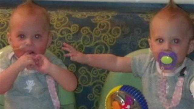 Twins With Rare Disorder To Receive Life-Saving Miracle