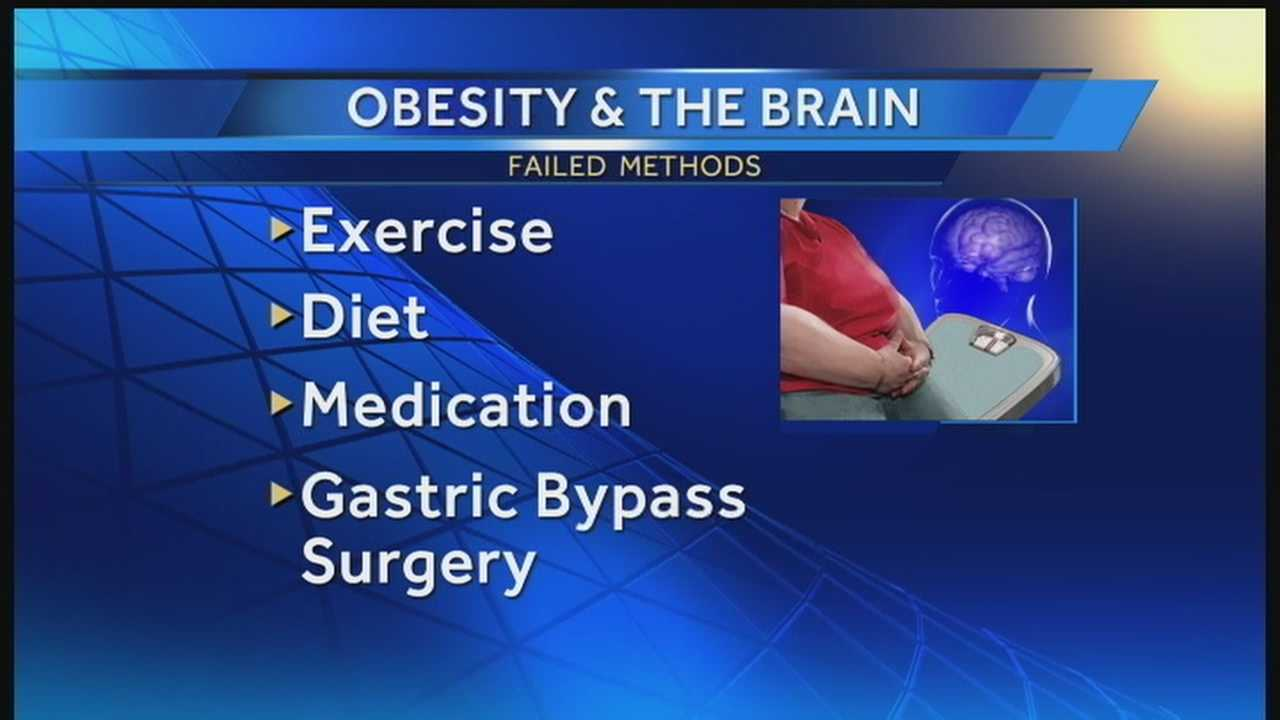 img-obesity and the brain
